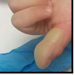 lesion dedo de la mano