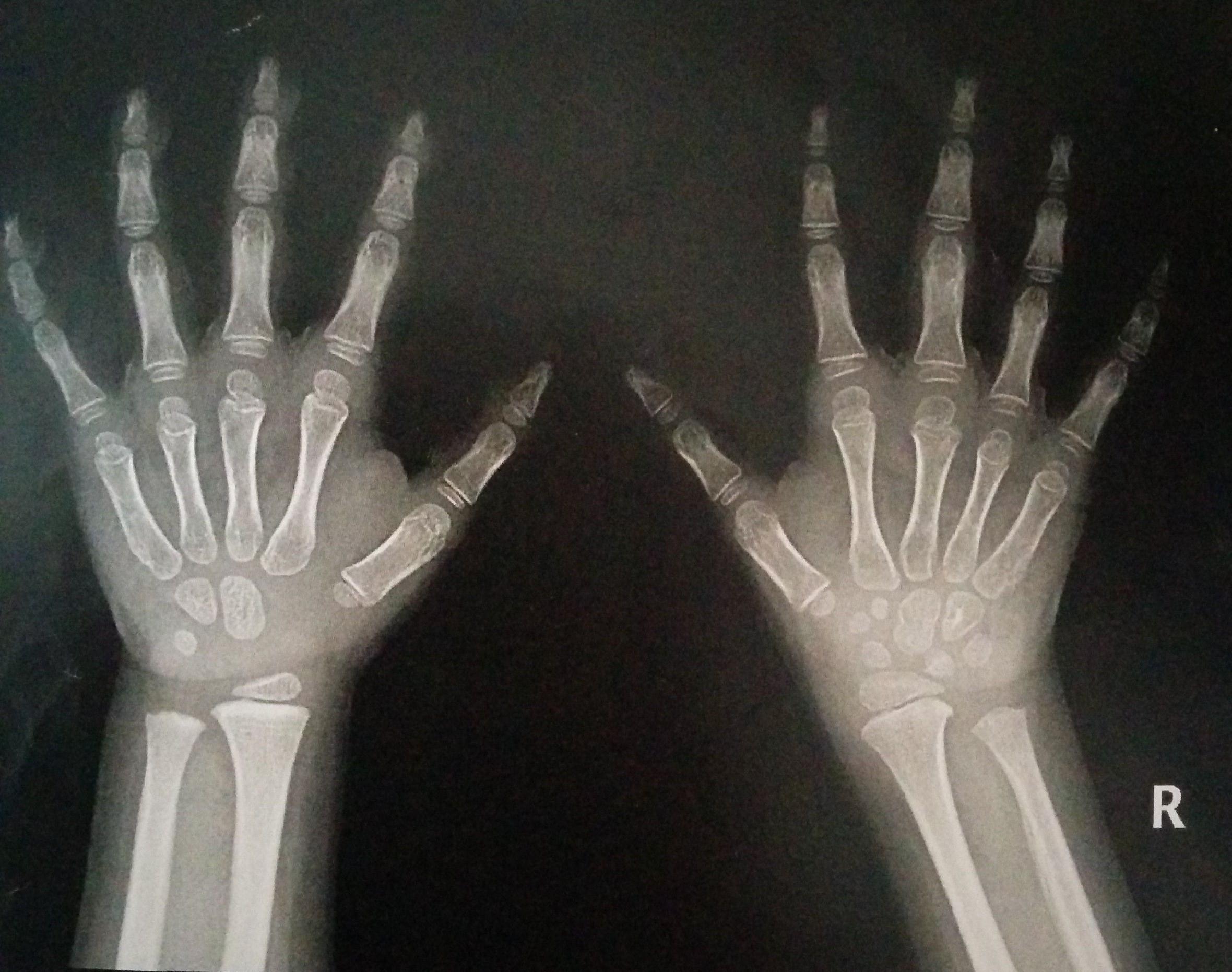 Dorable ósea En La Muñeca Modelo - Anatomía de Las Imágenesdel ...