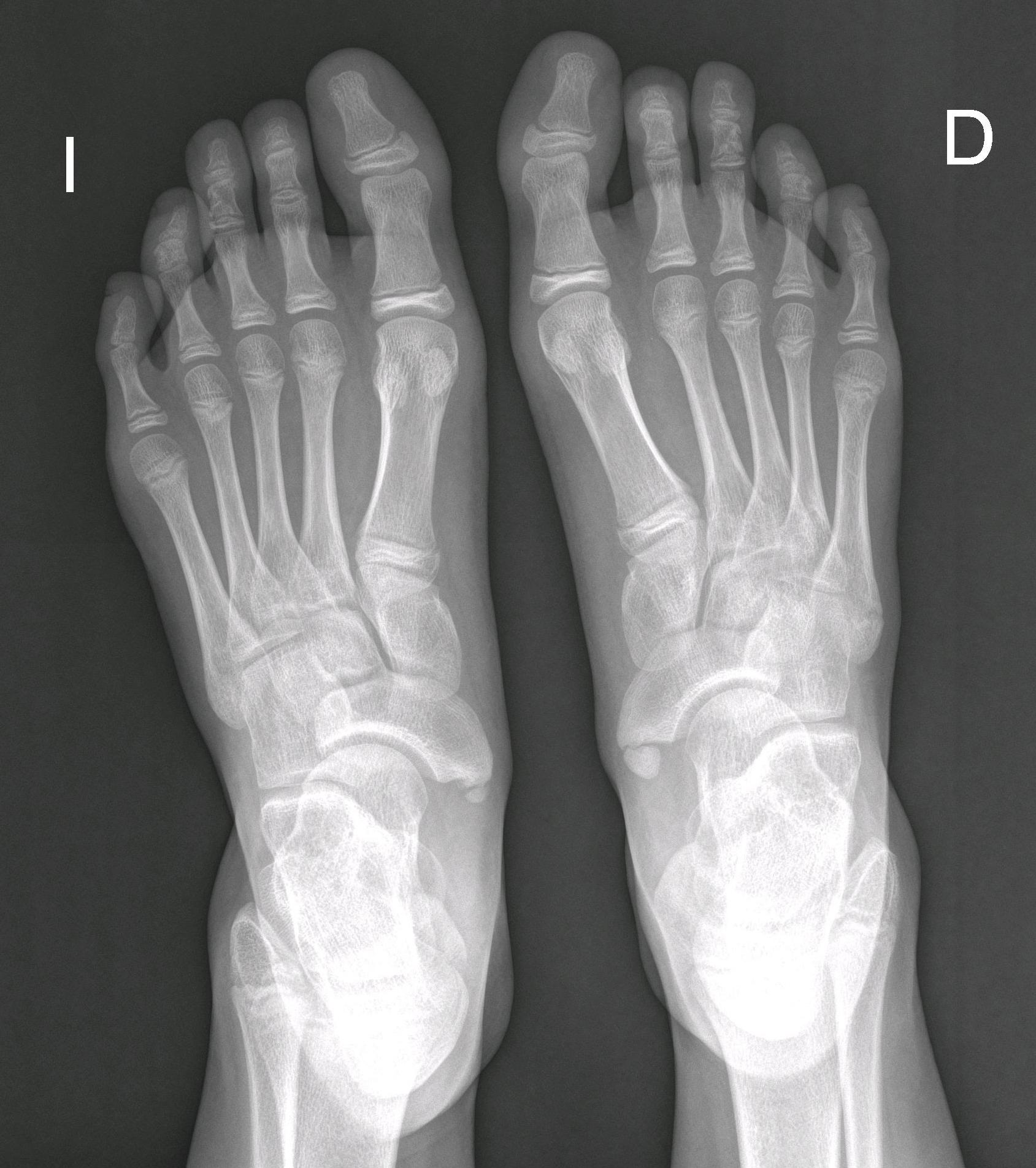 Continuum: Niña de 11 años con dolor en el pie