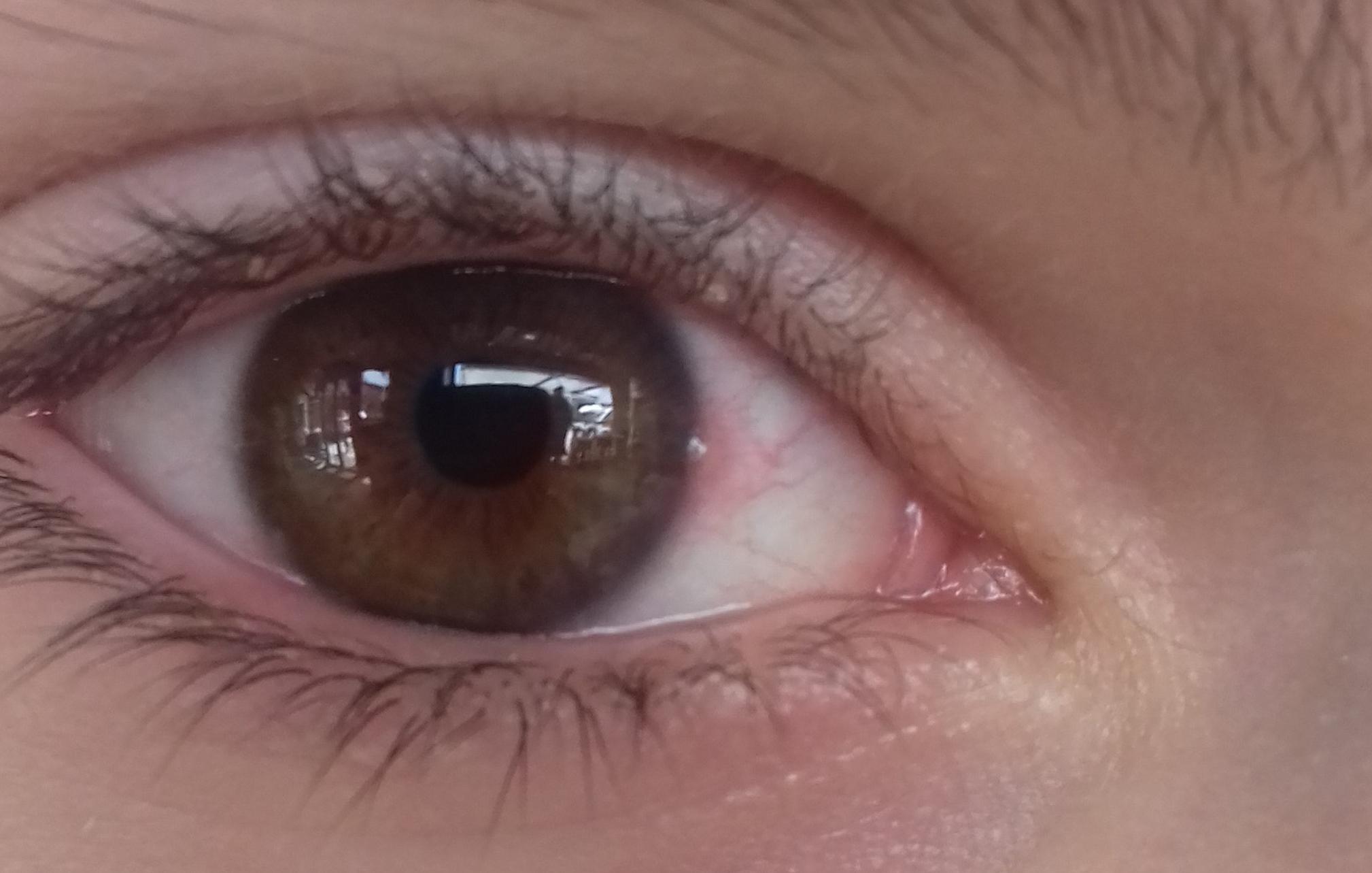registrarse globo ocular