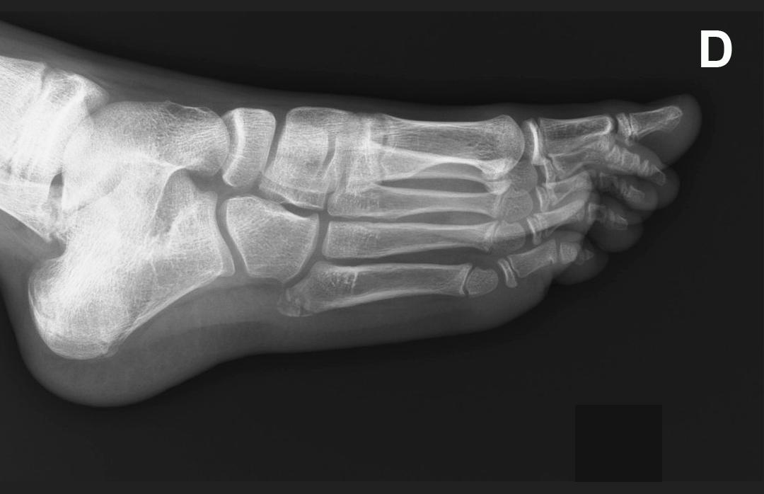 Continuum dolor en el borde externo del pie en un joven for Cuarto y quinto metatarsiano