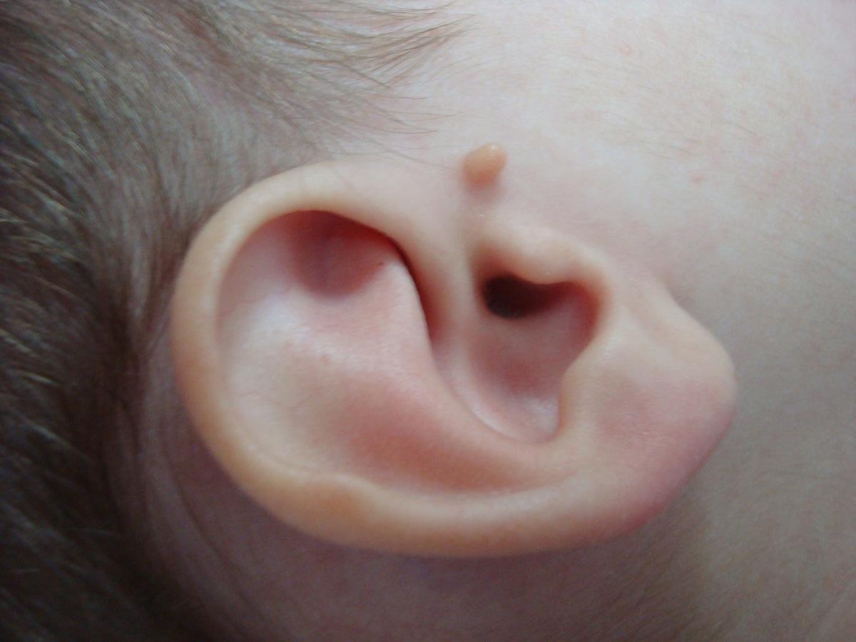 Continuum: Manejo clínico de una niña de 14 meses con apéndice ...