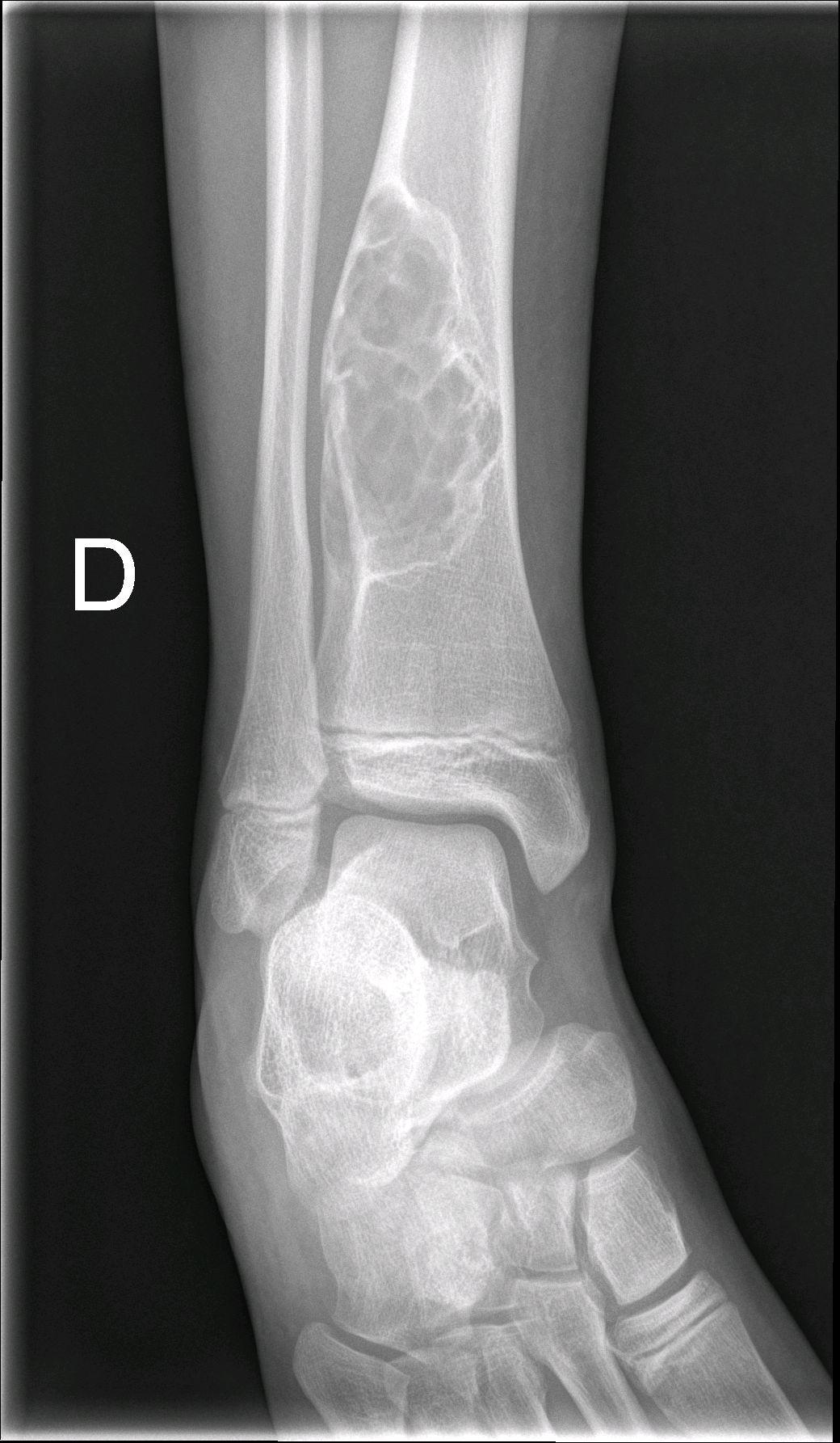 Continuum: Niña con dolor en tobillo derecho. ¿Lesión ósea
